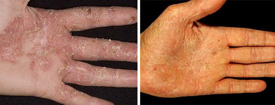 Кандидоз кожи рук