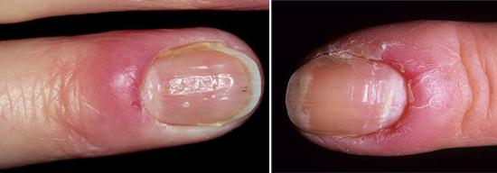 На фото молочница на коже рук