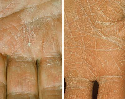 Грибок трихофитон на коже рук