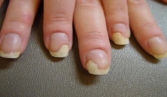 фото грибок ногтей на руках