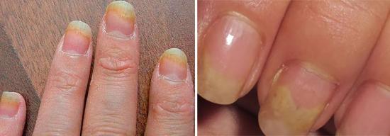 дистальный грибок ногтей