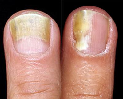распространение грибка ногтей