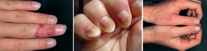 На фото грибок ногтей на руках