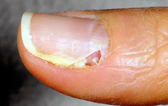 латеральное грибковое поражение ногтя