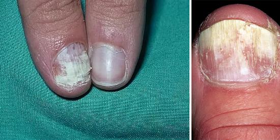 На фото грибок ногтей