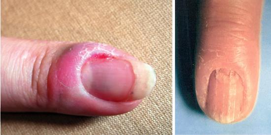 симптомы и признаки начальной стадии грибка ногтей
