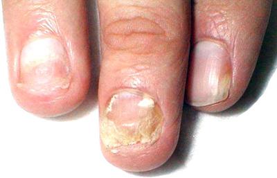 формы грибка ногтей