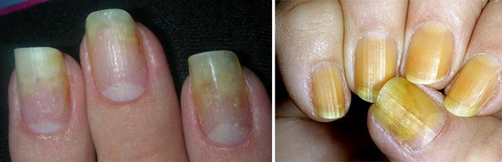 нормотрофический микоз ногтей