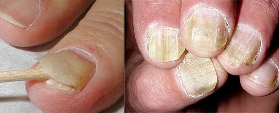 атрофический микоз ногтей
