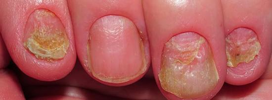 На фото изменение цвета ногтей
