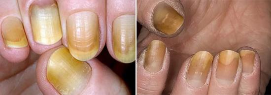 поражение ногтей грибком трихофитон рубрум