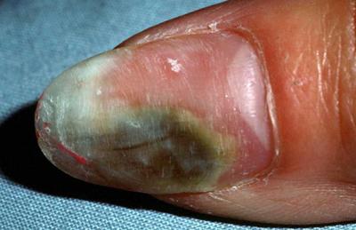 поражение ногтей плесневыми грибками
