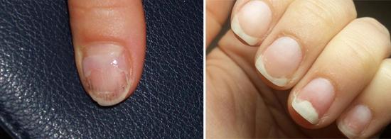 На фото первые признаки грибкового поражения ногтей