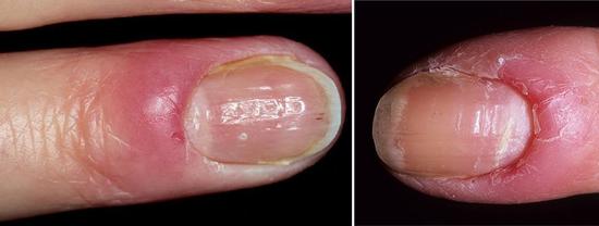 На фото поражение ногтей грибком кандида