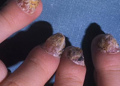 хроническое поражение ногтей грибком кандида