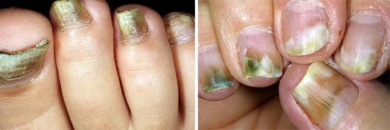 плесневый грибок ногтей