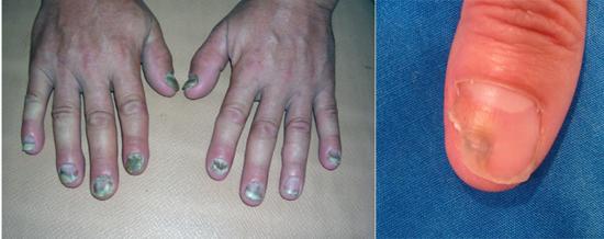 плесневые грибки на руках