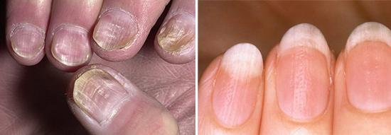 псориаз и микоз ногтей
