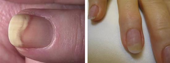 Признаки грибка ногтей на руках