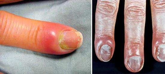 Поражение ногтей грибками кандида
