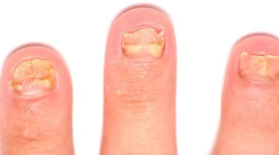 деструкция ногтей на руках