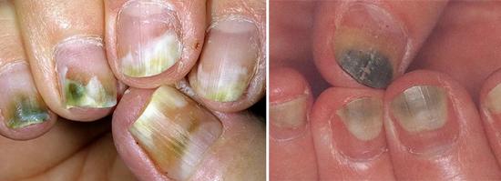 На фото смешанный грибок ногтей на руках