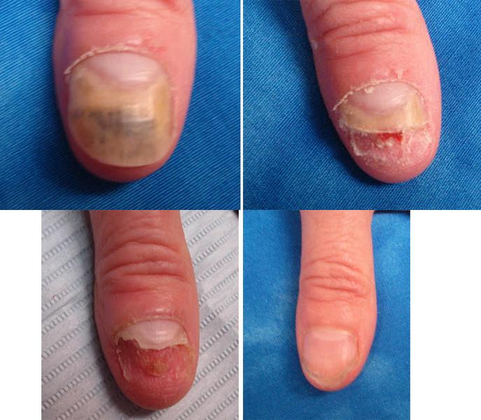 На фото показан результат лечения грибок ногтей на руках