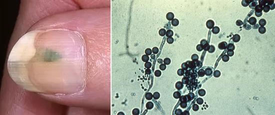 Кандидоз и грибок кандида
