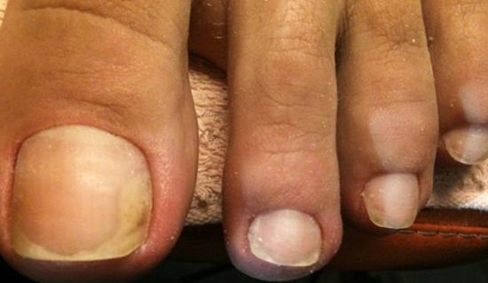 начало грибкового поражения ногтей на ногах