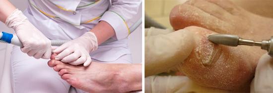 чистка ногтей на ногах с помощью фрезера