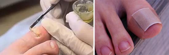лечение грибка ногтей в запущеннной форме