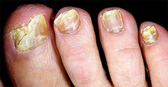 запущенный грибок ногтей на ногах