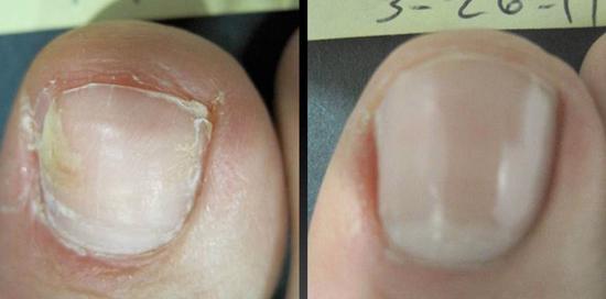 грибок ногтей до и после лечения