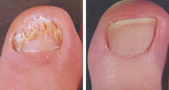 На фото результат лечения онихомикоза