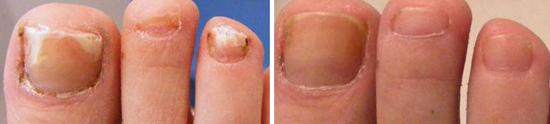 Результат лечения грибка ногтей