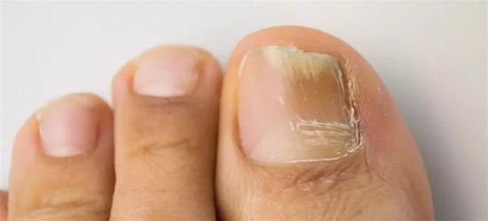 На фото онихомикоз первого пальца ноги