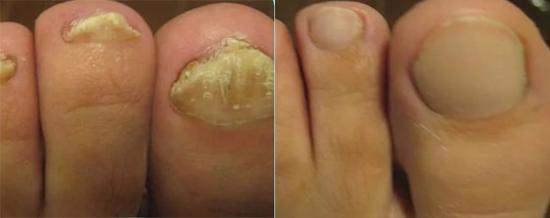 лечение грибка до и после