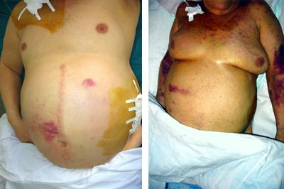 признаки вирусного гепатита В