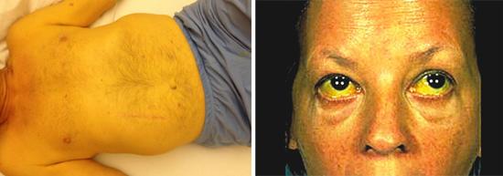 Признаки гепатита и цирроза печени