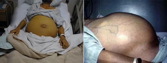 фото последствия гепатита