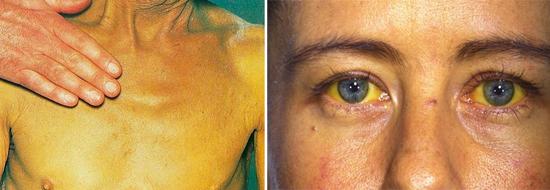 признак гепатита В