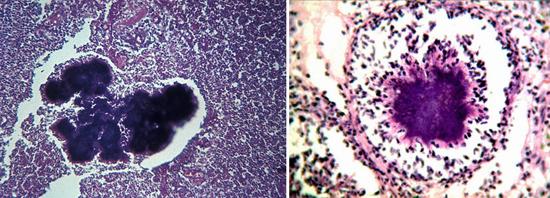 на фото actinomyces