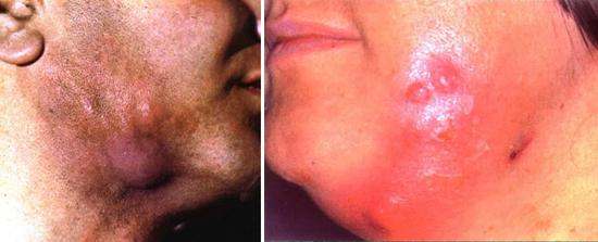 поражение кожи лица и шеи актиномицетами