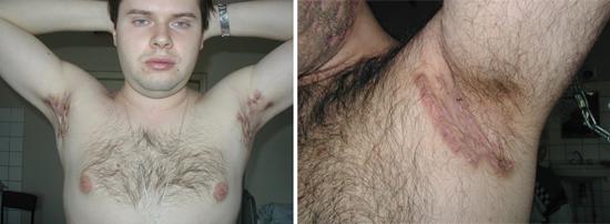 поражение кожи актиномицетами