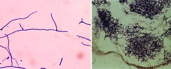 на фото актиномицеты