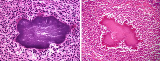 актиномикоз
