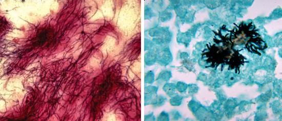 патогенные actinomyces