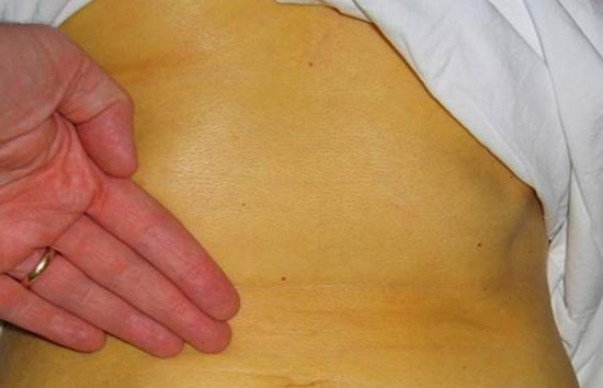 На фото признаки гепатита