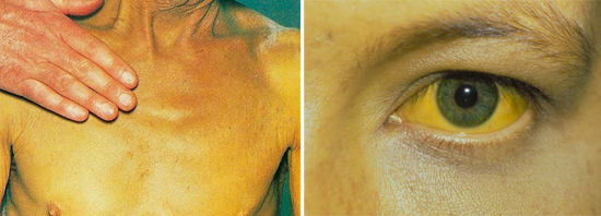 На фото признаки болезни Боткина