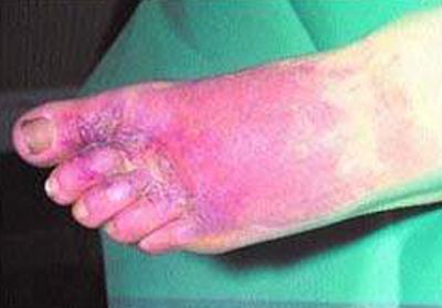 отек стопы при эритразме